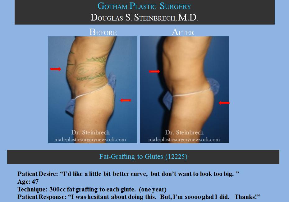 gynecomastia surgery steroids