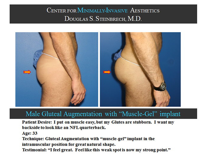 Male Enhancement by Top Plastic Surgeon in Staten Island
