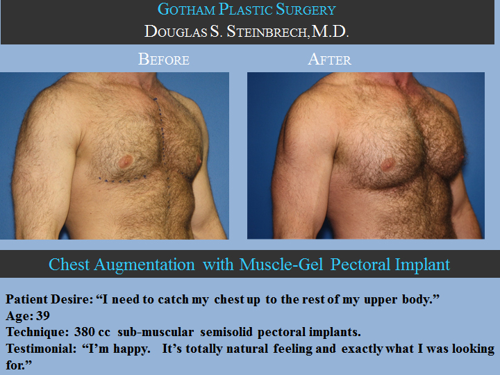 Pectoral Implants Before And After Gallery Of Patients In Ny