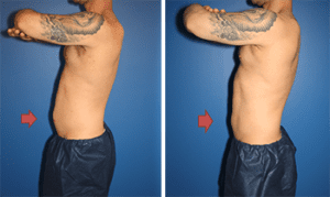 coolsculpting-by-dr-steinbrech-nyc