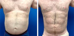 6-pack-implants-before-after