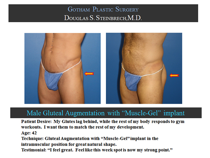 Male Body Surgery Before After Pictures Nyc