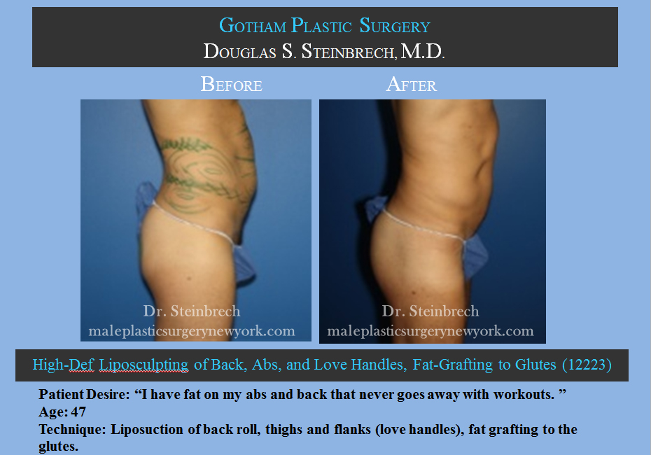Male Liposuction Before And After Gallery New York