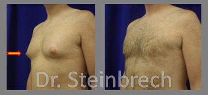 An NYC man with gynecomastia. Dr. Douglas Steinbrech restored his confidence with male breast reduction surgery.
