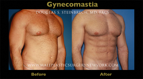 gynecomastia-surgery-NYC-before-after-01