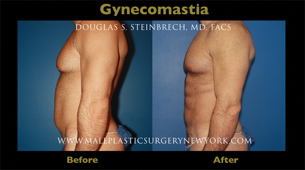 gynecomastia-surgery-NYC-before-after-02