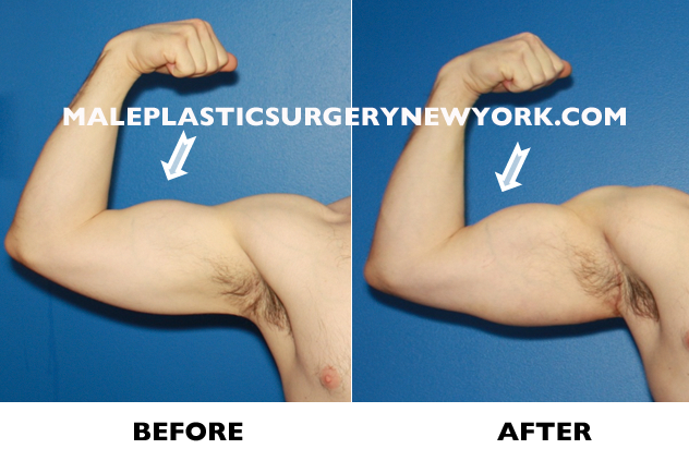 biceps-implants-before-after-NYC