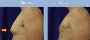 before-after-gynecomastia