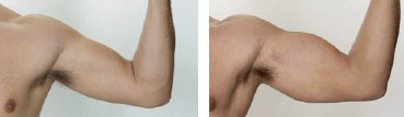 bicep-implants-before-after