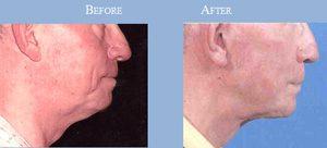 facelift-men-before-after