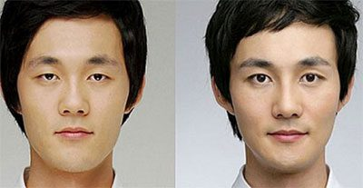Korean K Pop Plastic Surgery For Men In Nyc