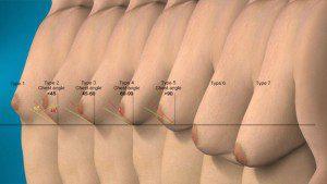 types of gynecomastia