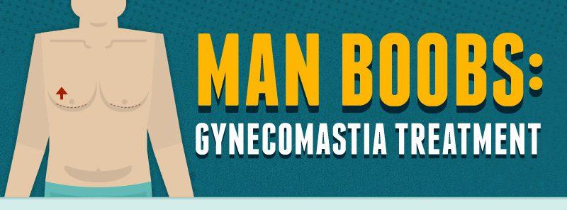 man-boobs-gynecomastia-thumb