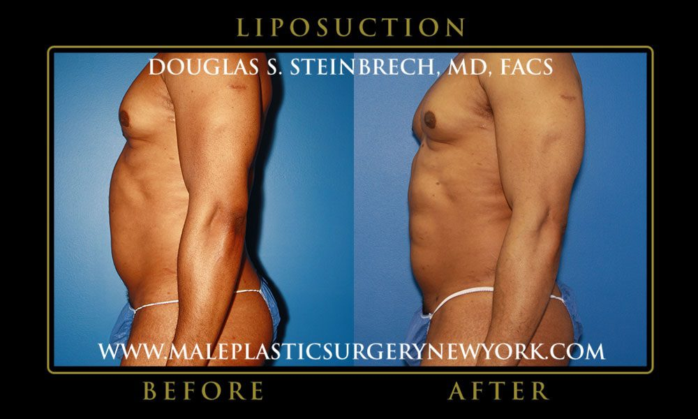 Liposuction With BodyBanking® -
