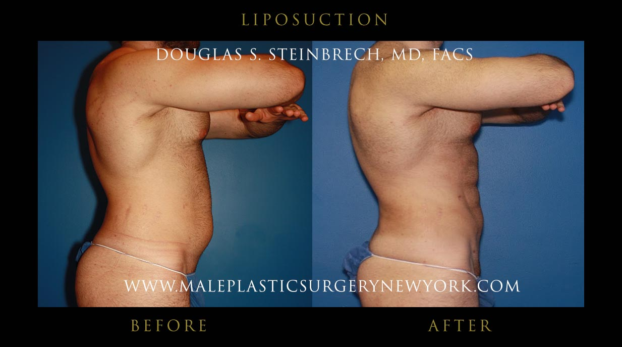 what is liposuction Ohsu cosmetic & plastic services surgeons perform liposuction (lipoplasty) to reshape your body through the removal of excess fat--an effective treatment to eliminate fat deposits and improve your body's contour.