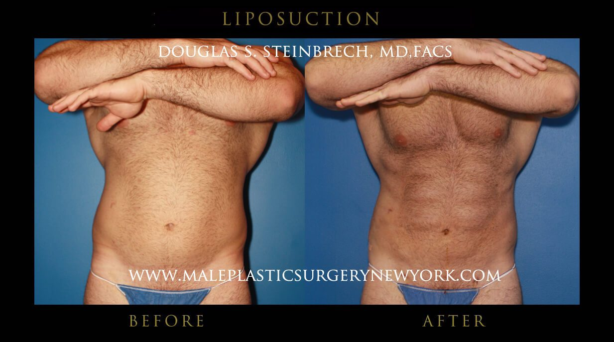 Male Liposuction New York