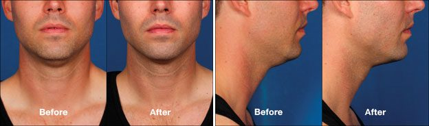 Double-Chin-Fat-Removal-in Los-Angeles-before-after