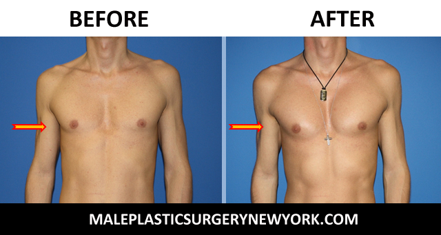 pectoral-implants-NYC