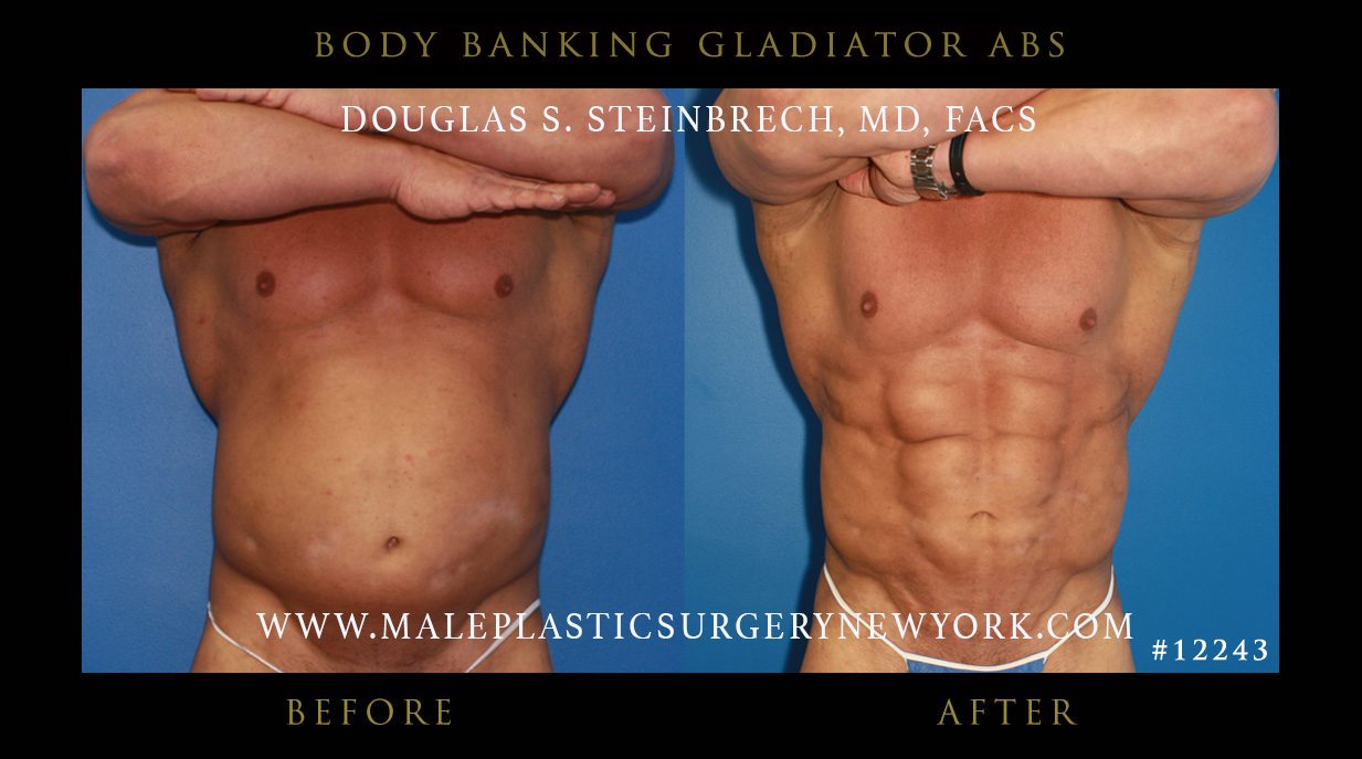 Pack Abs Implants in NYC