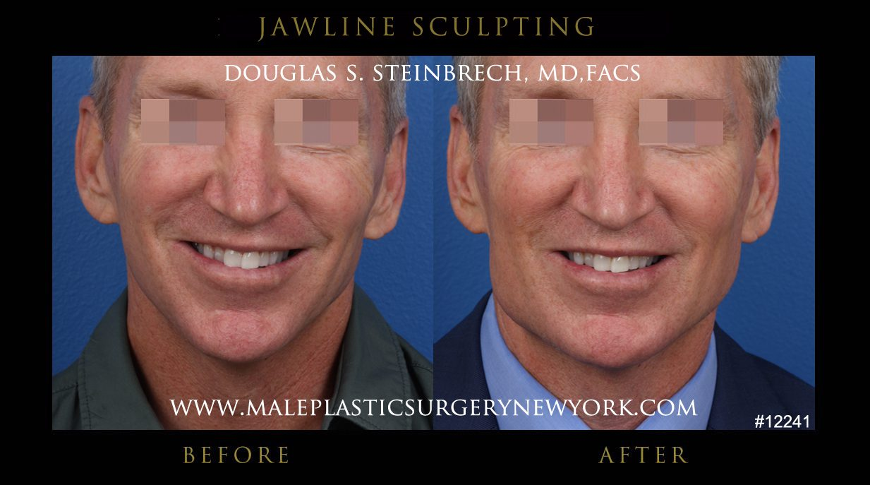 Jawline Sculpting Gallery before and after photos in NYC