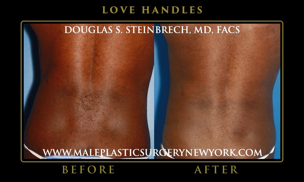 love-handles-liposuction-NYC-01
