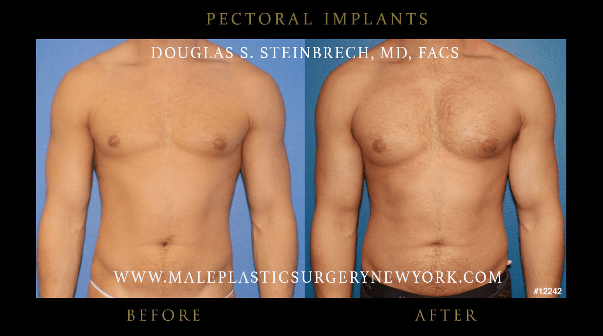 Pectoral Implants Gallery Before Amp After Photos Nyc Patients