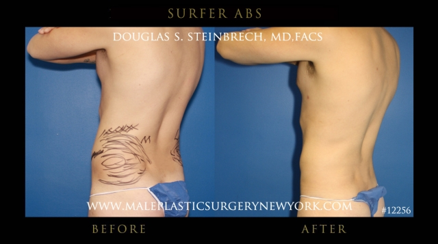 To view before and after photos from NYC patients who had abdominal 6 ...
