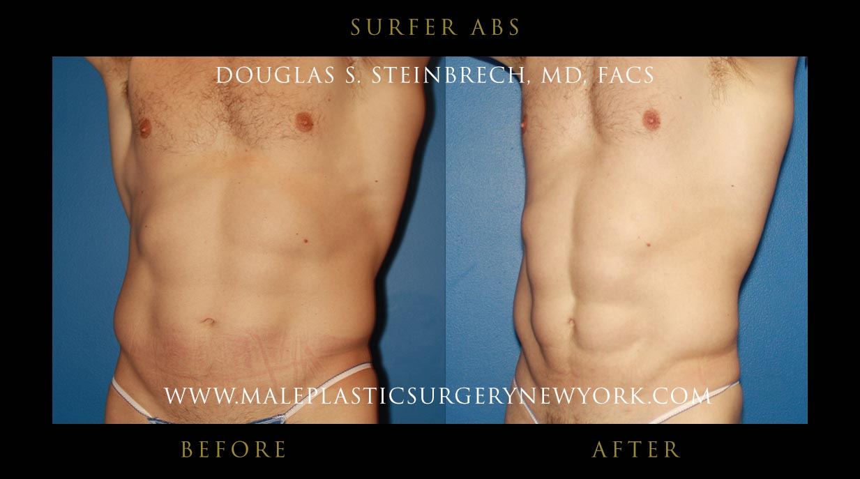 6 Pack Implants In Nyc