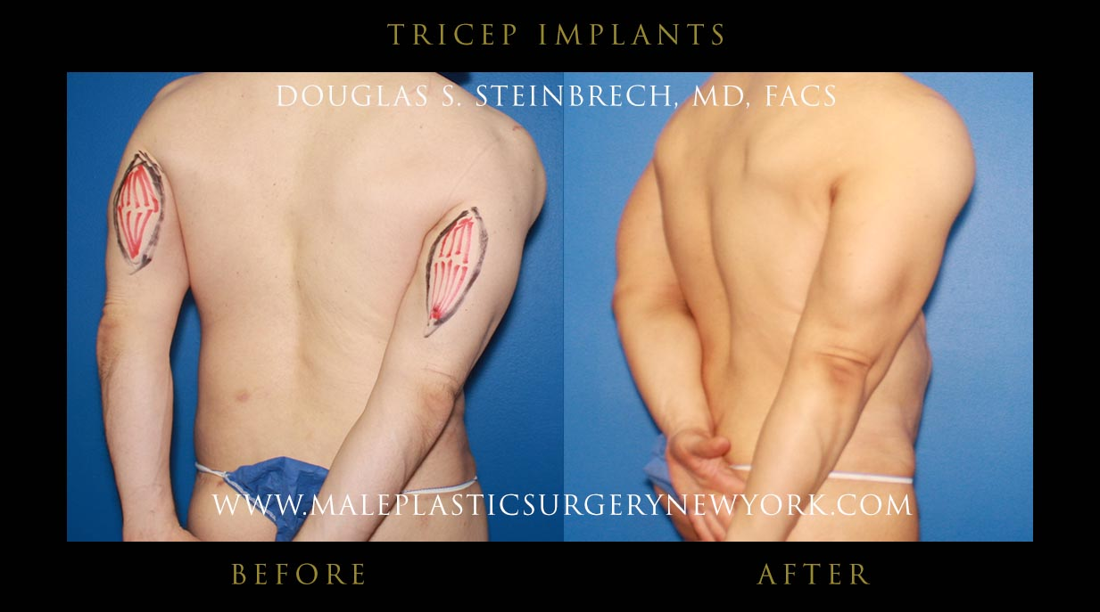Tricep Implants in NYC