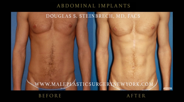 6 Pack Abs Implants In Nyc