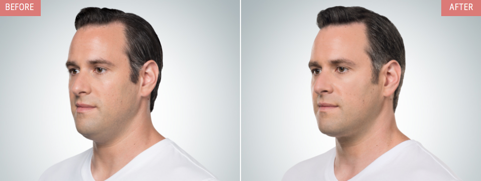 kybella-male-injections-treatments-NYC-before-after-02