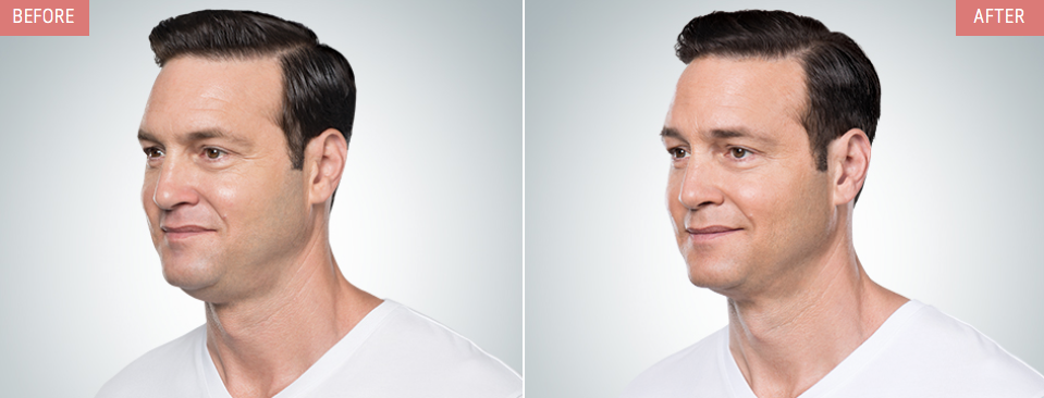 kybella-male-injections-treatments-NYC-before-after-03