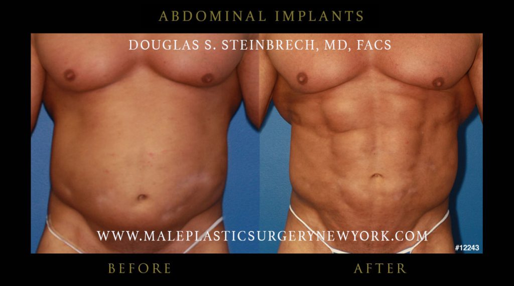 6 Pack Implants