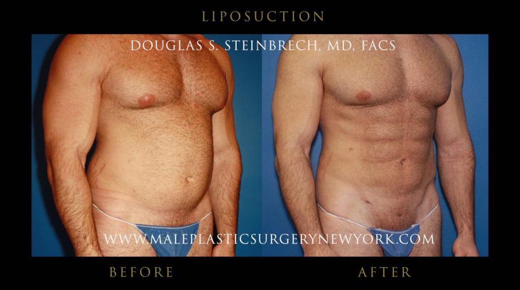 Cost Of Male Liposuction Surgery By Body Area In Nyc