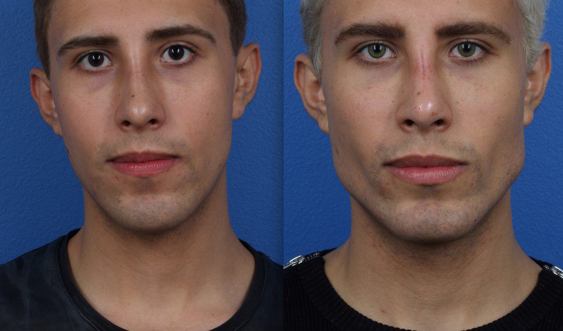 Male Model Plastic Surgery in NYC
