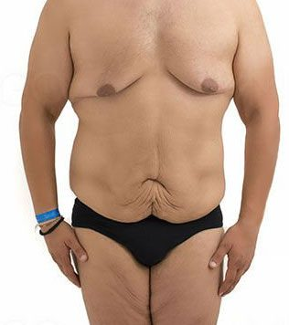 Loose Skin Surgery For Men In Nyc