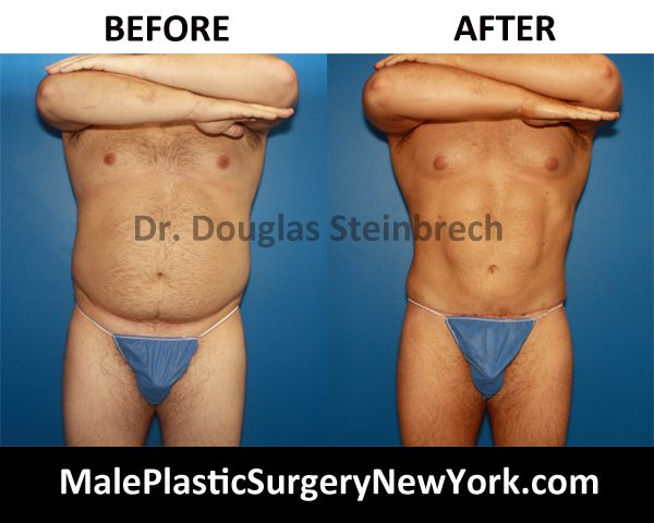 TorsoTuck Before and After