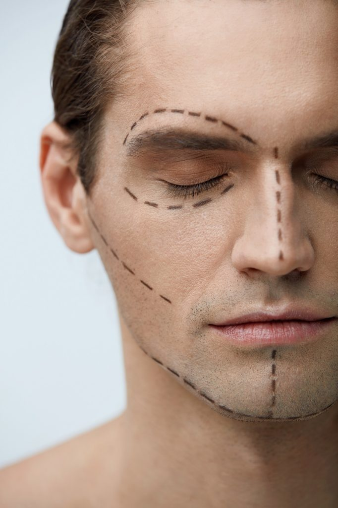 facial implants for men