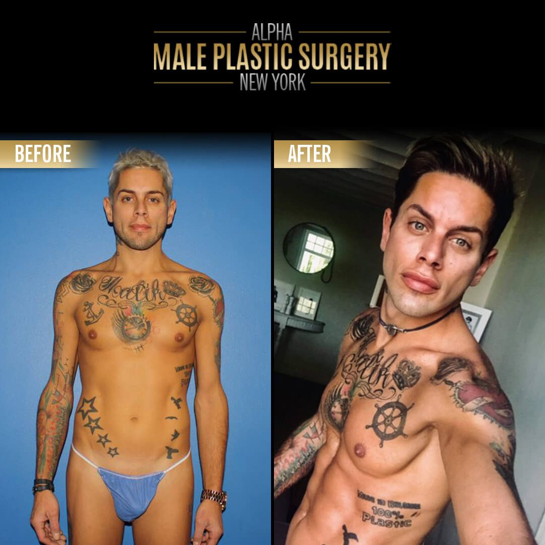ab implants in nyc