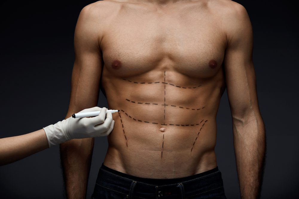 Can You Get Plastic Surgery to remove body fat men